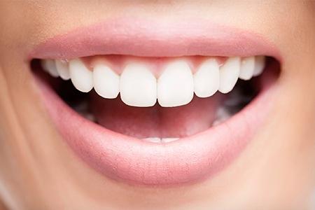 tandblekning malmö laser